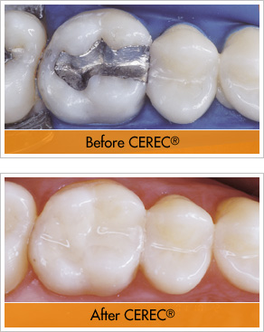 CEREC® Porcelain Inlays/Onlays